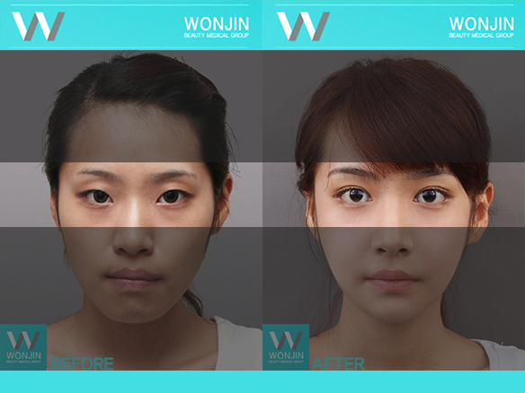 eyelid-surgery-befor-and-after-061