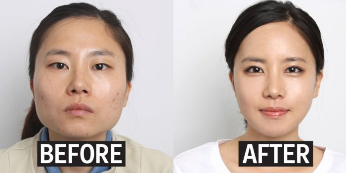 eyelid-surgery-befor-and-after